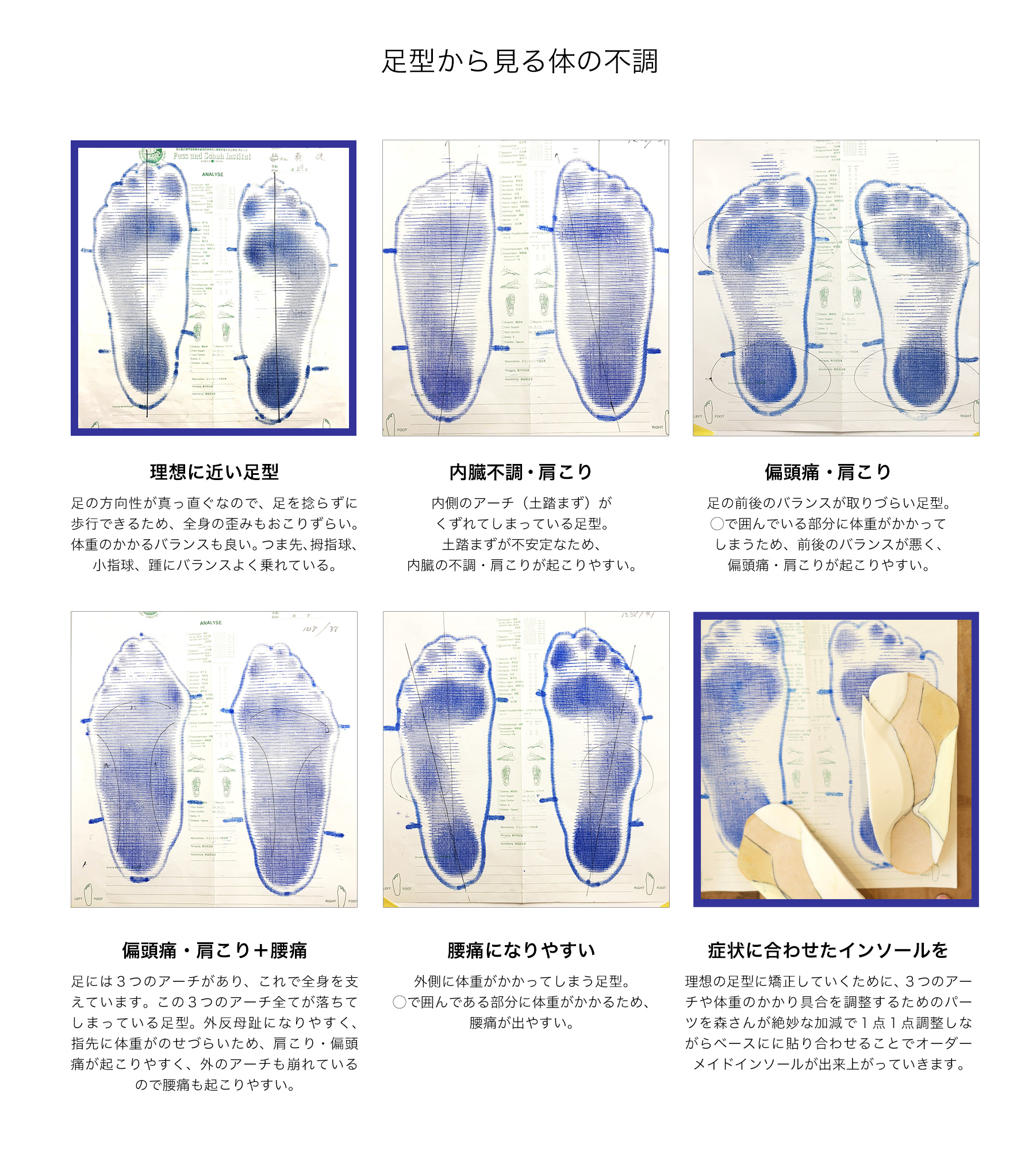 footworks_insole_ex2